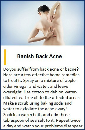 back acne solution