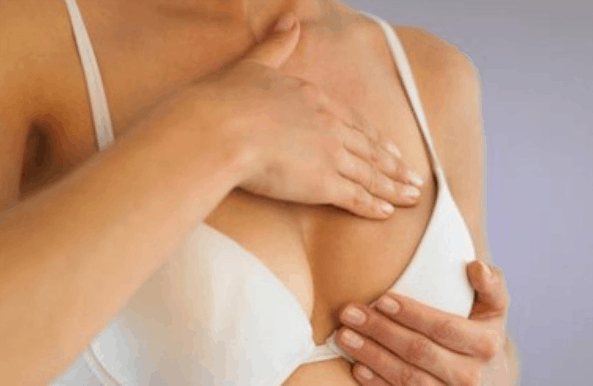 home remedies for breast stretch marks quickly